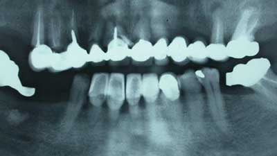 docteur marc chouraki chirurgien dentiste a paris 8 implantologie implantation immediate