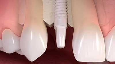 docteur marc chouraki chirurgien dentiste a paris 8 implantologie implantologue 8eme arrondissement implant ceramique implants ceramiques pose 1