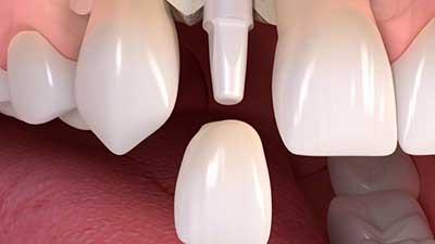 docteur marc chouraki chirurgien dentiste a paris 8 implantologie implantologue 8eme arrondissement implant ceramique implants ceramiques pose 2
