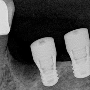 docteur marc chouraki chirurgien dentiste a paris 8 implantologie implantologue 8eme arrondissement implants courts dents