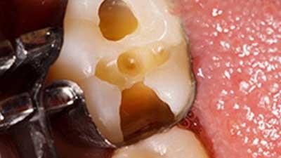 docteur marc chouraki chirurgien dentiste a paris 8 implantologie implantologue 8eme arrondissement composites