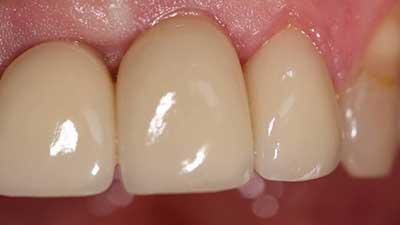 docteur marc chouraki chirurgien dentiste a paris 8 implantologie implantologue 8eme arrondissement greffe gingivale