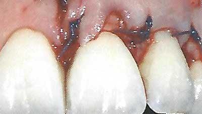 docteur marc chouraki chirurgien dentiste a paris 8 implantologie implantologue 8eme arrondissement recouvrement des racines denudees grace a la chirurgie 6