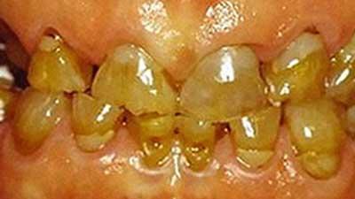 docteur marc chouraki chirurgien dentiste a paris 8 implantologie implantologue 8eme arrondissement syndrome de capdepont ameogenese imparfaite