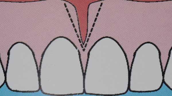 docteur marc chouraki chirurgien dentiste a paris 8 implantologie parodontologie frenectomie