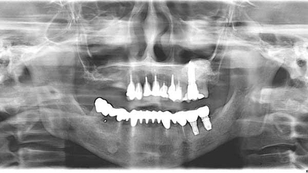 docteur marc chouraki chirurgien dentiste a paris 8 implantologie parodontologie sinus lift avant