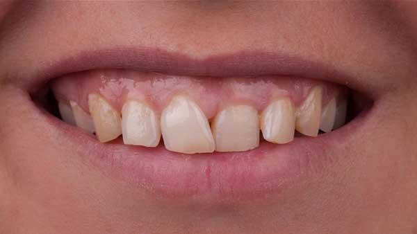 docteur marc chouraki chirurgien dentiste paris 8 chirurgie couronne ceramo ceramique 3