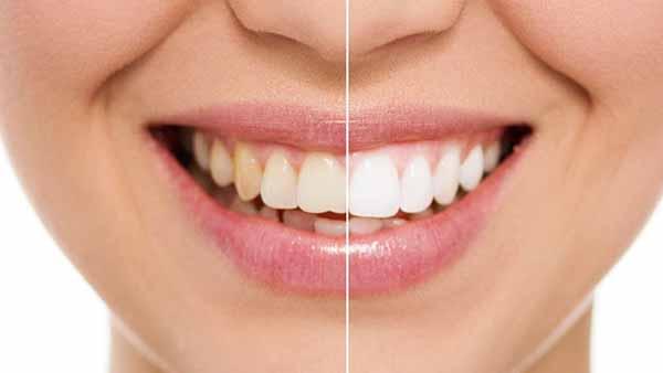 docteur marc chouraki chirurgien dentiste paris 8 chirurgie facette ceramique