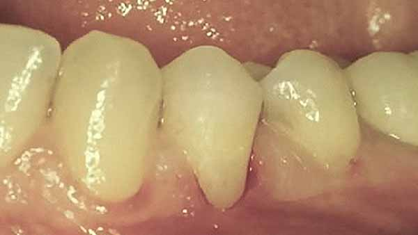 docteur marc chouraki chirurgien dentiste paris 8 chirurgie gingivoplastie