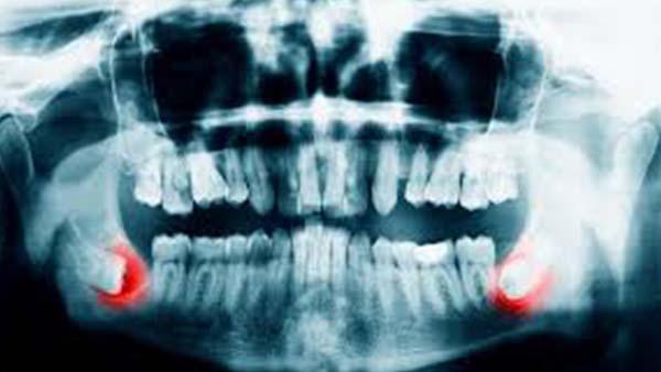 la chirurgie dentaire et l 39 implantologie paris 8 docteur marc chouraki. Black Bedroom Furniture Sets. Home Design Ideas